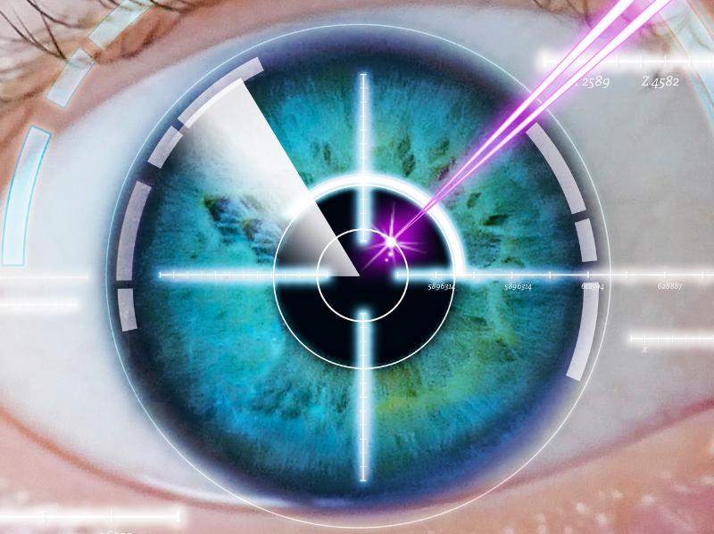 תיקון ראייה בלייזר
